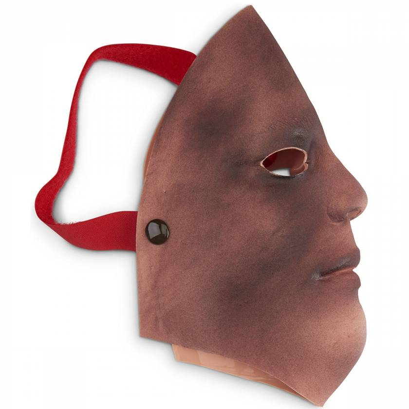 Life/form Moulage Wound - Burn - Face - 2nd/3rd Degree Simulator