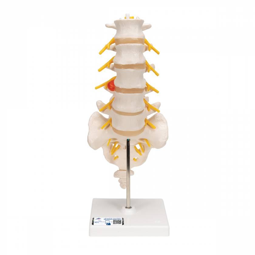 3B Smart Anatomy Human Lumbar Spinal Column Model with Dorso-Lateral Prolapsed Intervertebral Disc Model A76-5