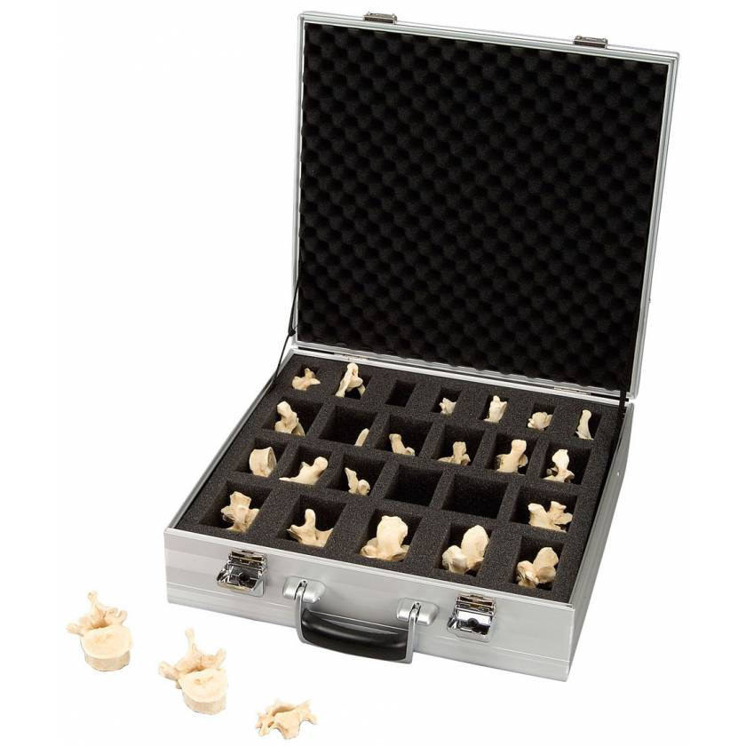Set of 24 BONElike Vertebrae Bonelike Vertebrae in Suitcase