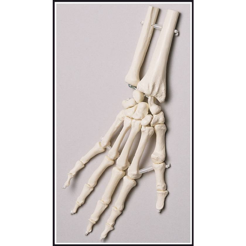 Premier Elastic-Mounted Hand Skeleton with Distal Radius & Ulna