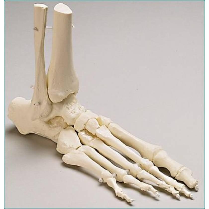 Premier Elastic-Mounted Foot with Distal Tibia & Fibula