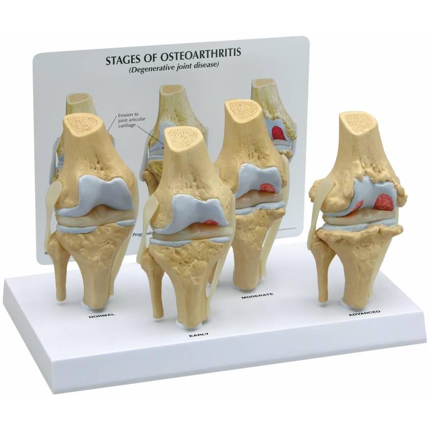 4-Stage Osteoarthritis Knee Model