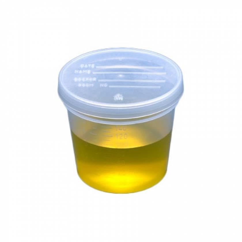 5oz Specimen Container with Snap Cap - Non-Sterile