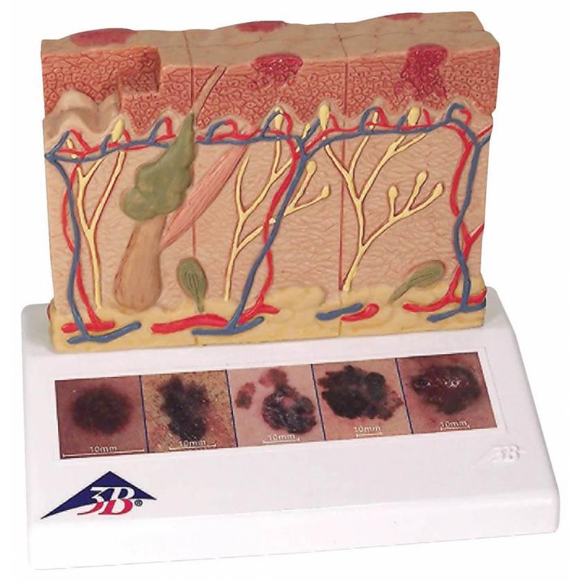 Skin Cancer Model - Enlarged 8 Times