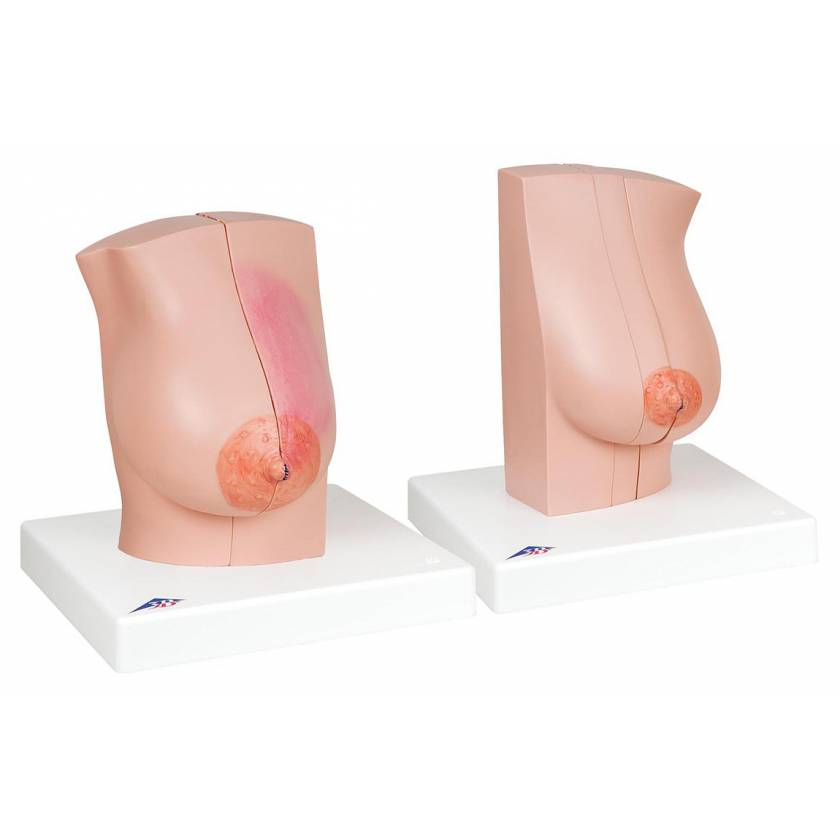 Model of the Female Breast