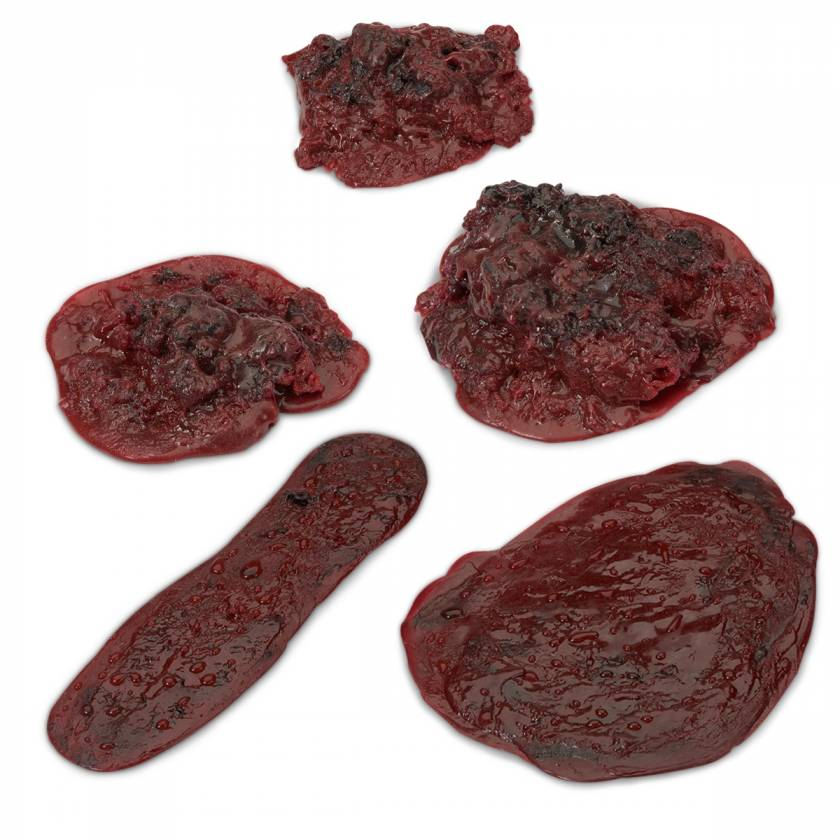 Life/form Moulage Wound - Simulated Clots and Hemorrhages - Set of 5