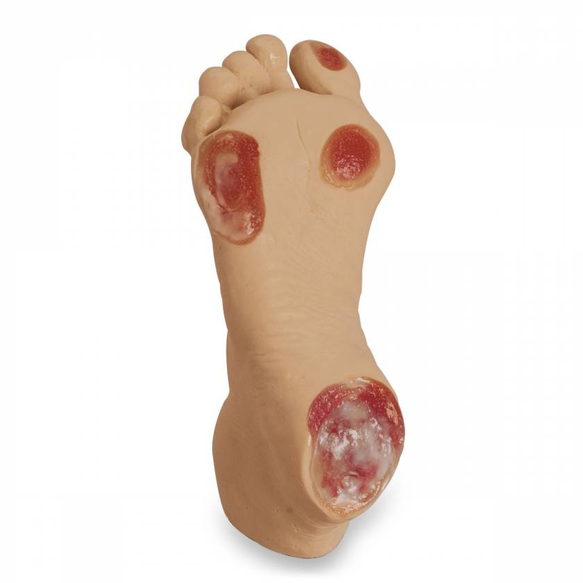 Life/form Elderly Pressure Ulcer Foot - Light