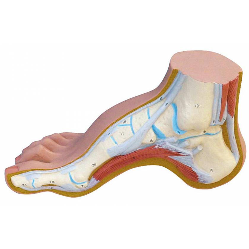 Hollow Foot Model (Pes Cavus)