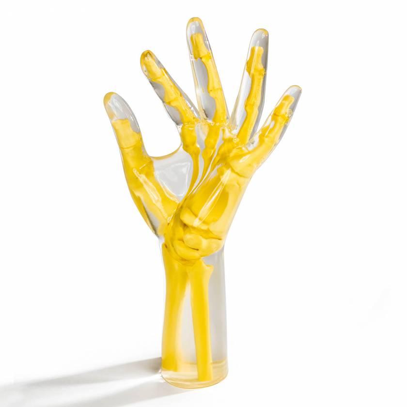 RS-115T RSD Transparent Oblique Position Hand Wrist Phantom