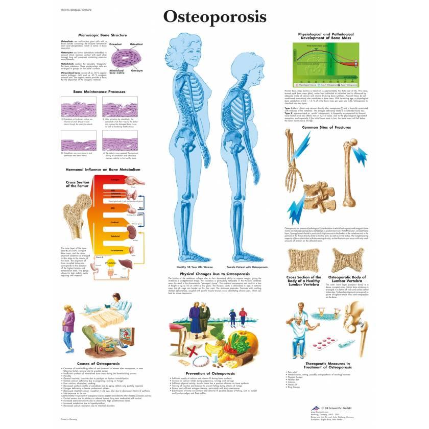Osteoporosis Chart