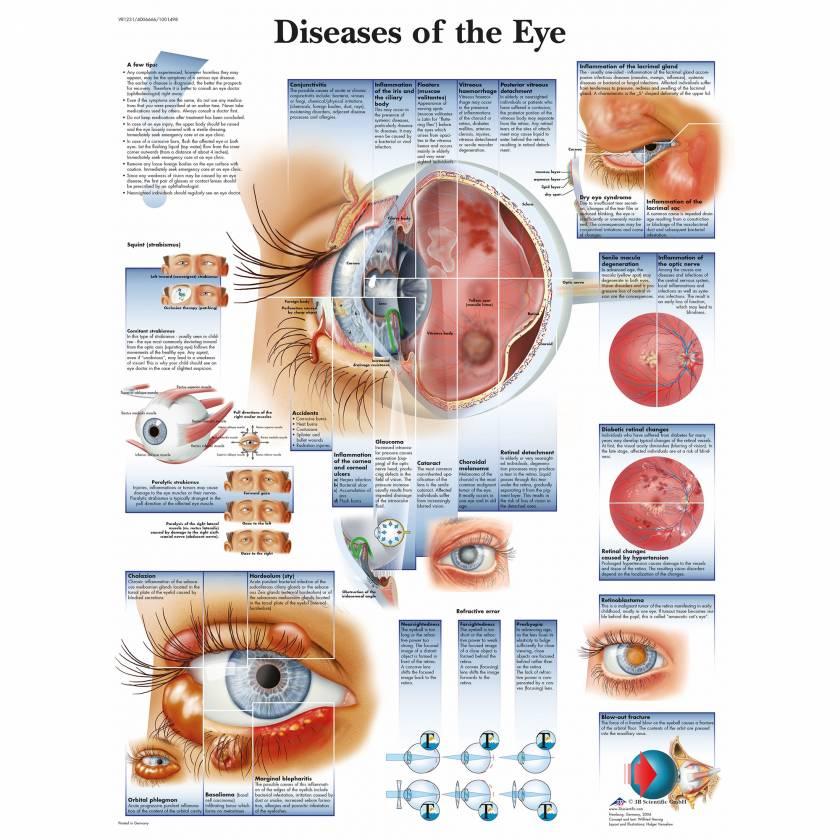 Diseases of the Eye Chart