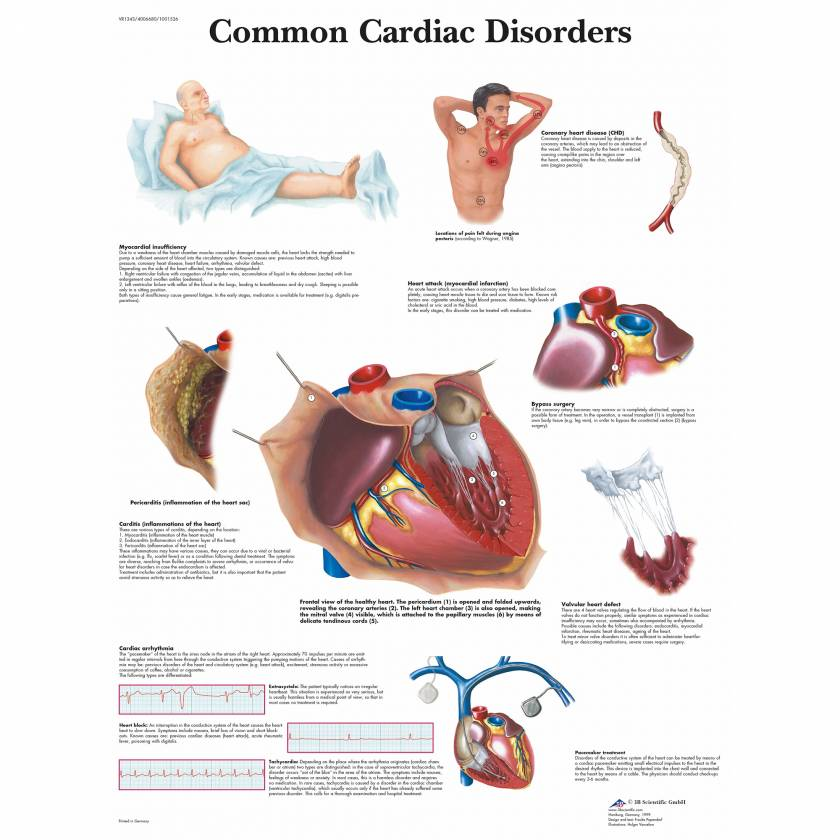 Common Cardiac Disorders Chart