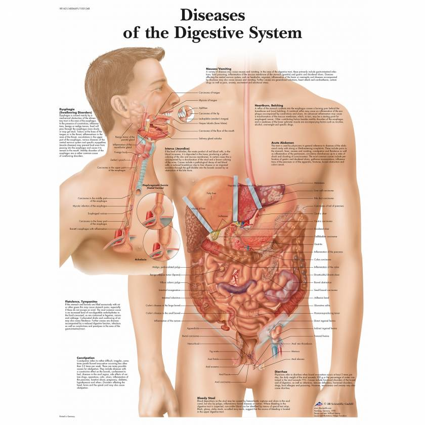 Diseases Digestive System Chart