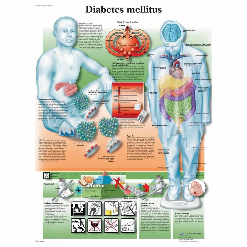 Diabetesmellitus Chart