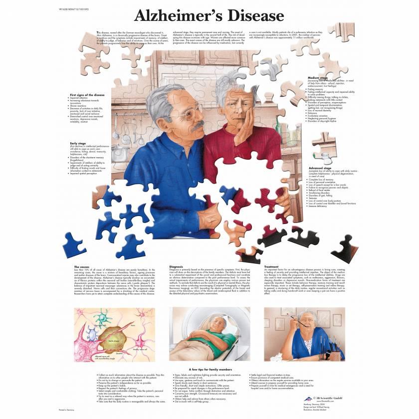 Alzheimer's Disease Chart