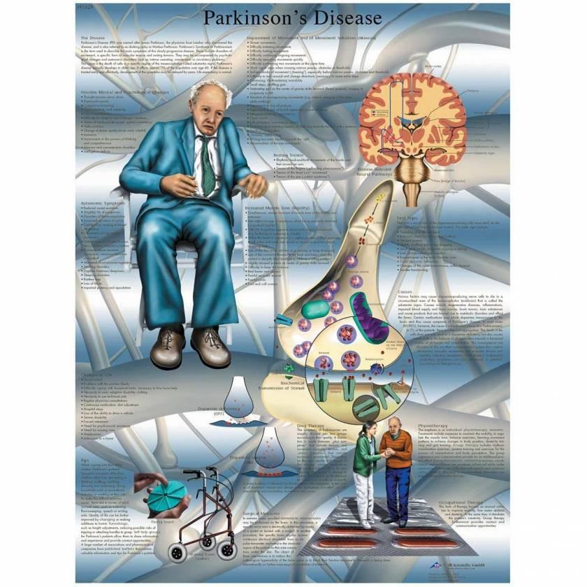 Parkinson's Disease Laminated Chart - English