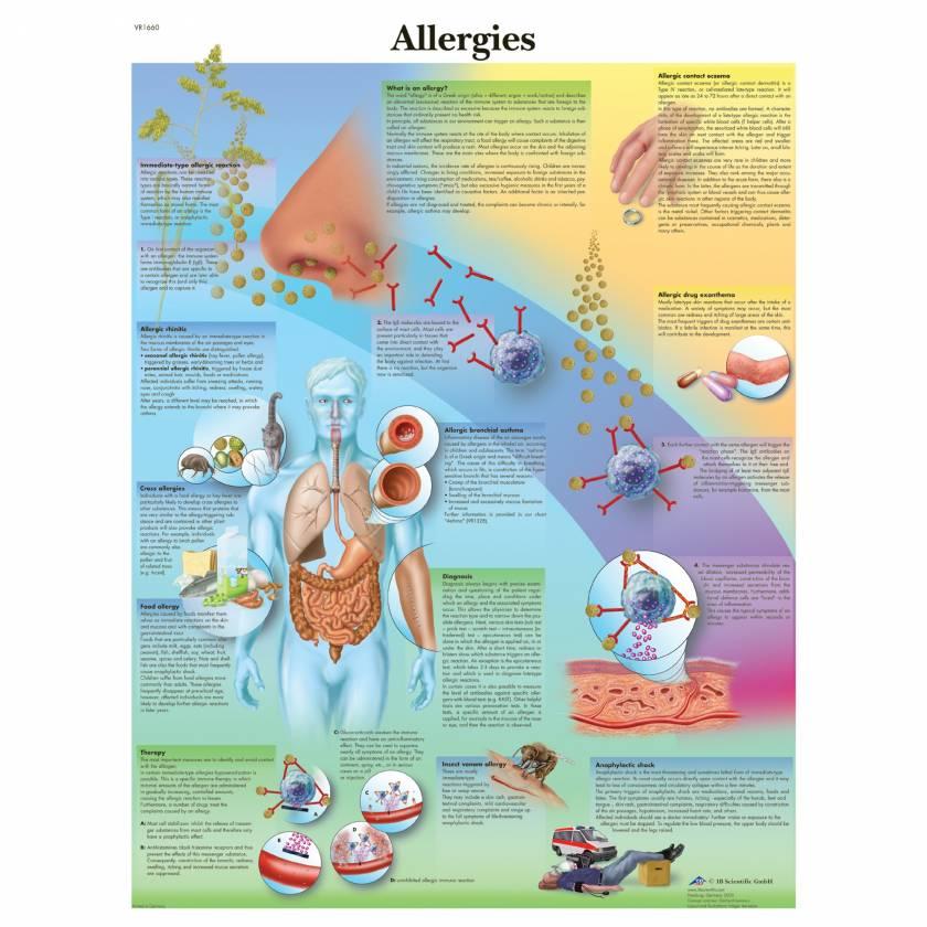 Allergies Chart