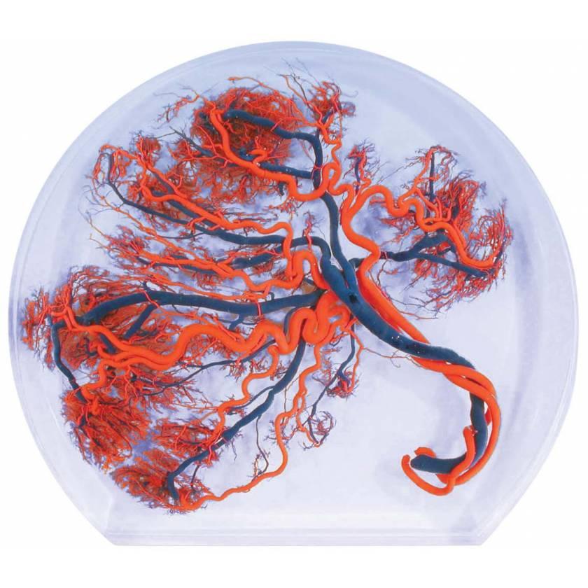 Embedded Placenta