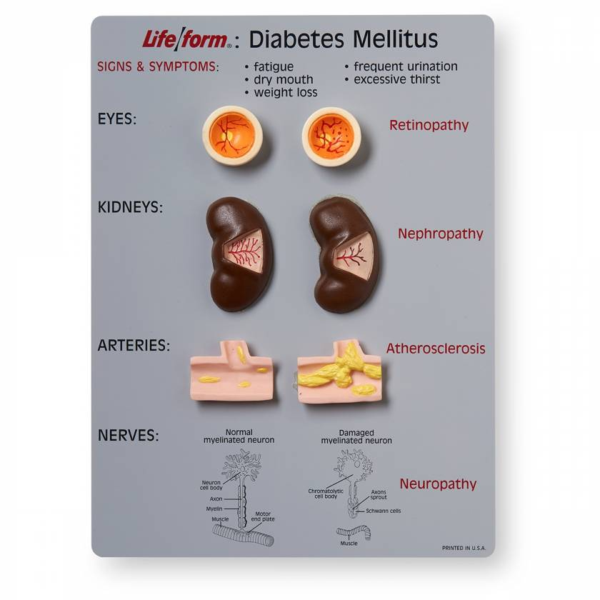 Life/form Diabetes Mellitus Teaching Kit