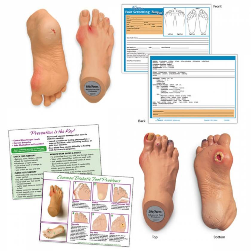 Life/form Common Foot Problems Kit