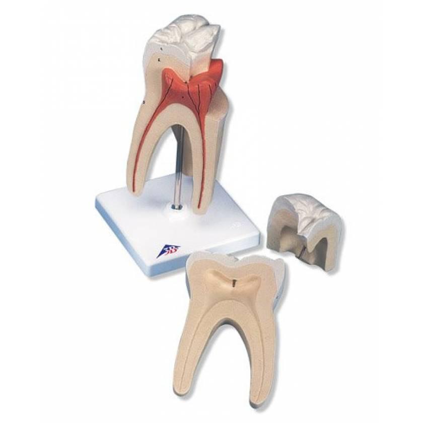 Upper Triple-Root Molar 3-Part
