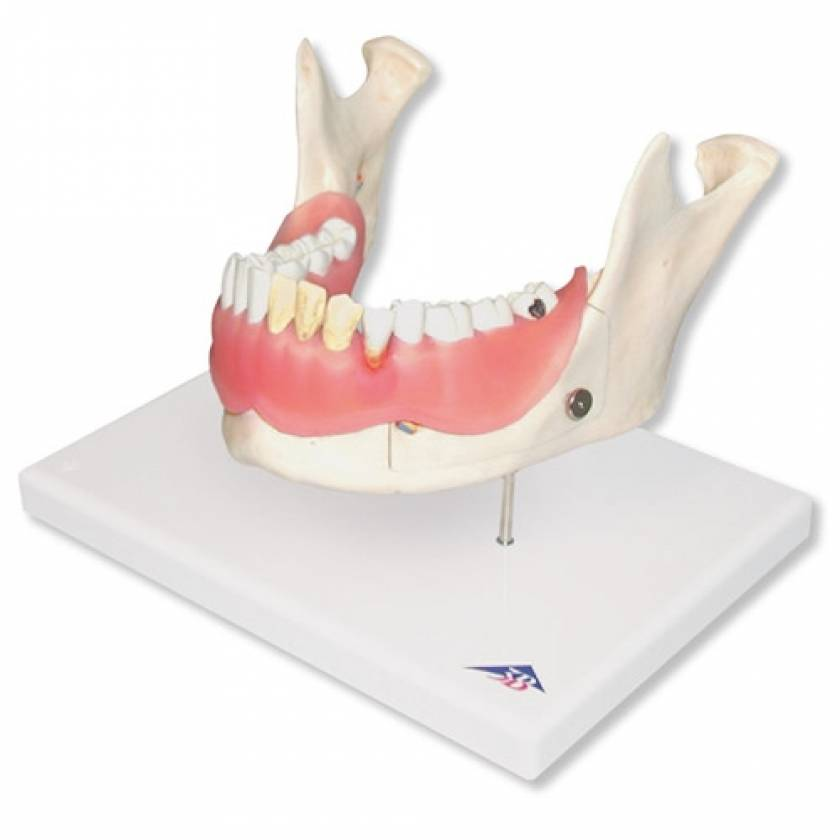 Diseases of the Teeth 21-Part