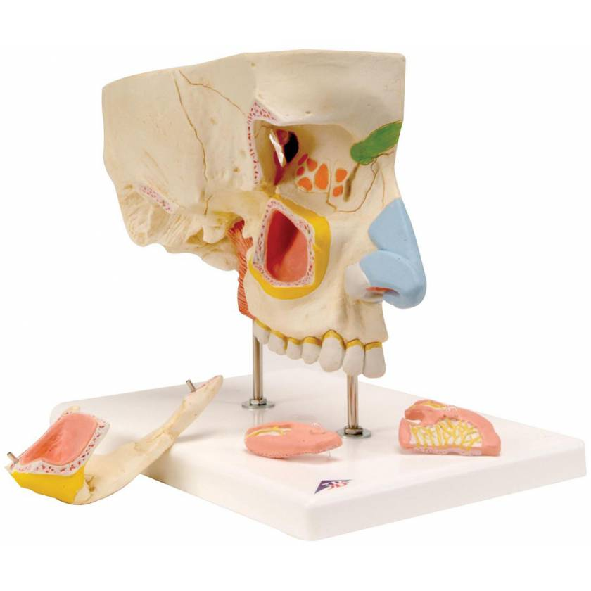 Nose Model with Paranasal Sinuses 5-Part