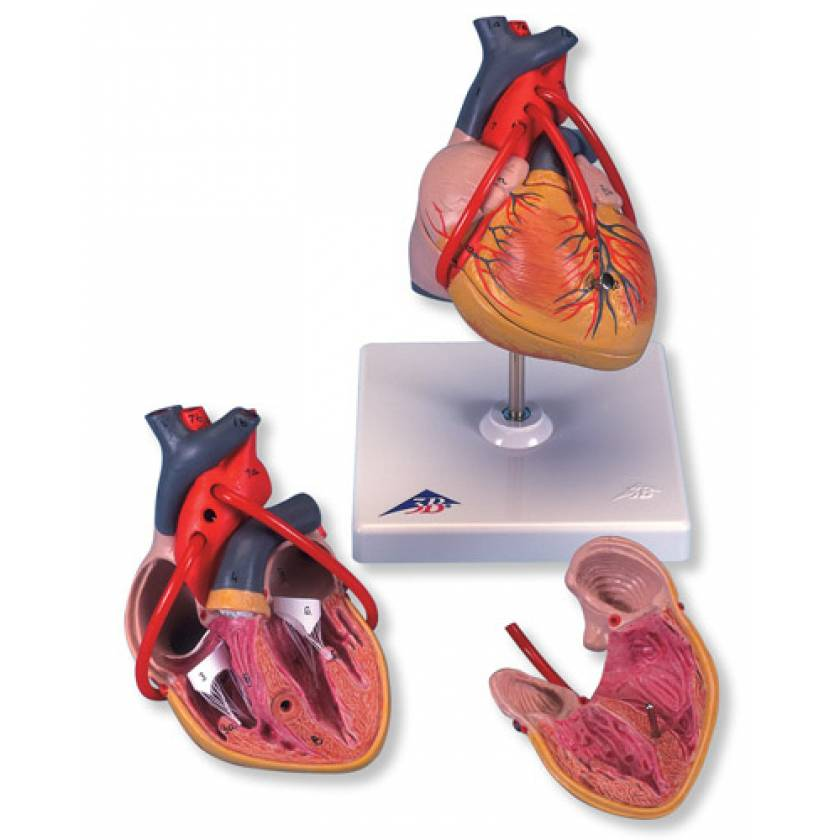 Classic Heart Model with Bypass 2-Part
