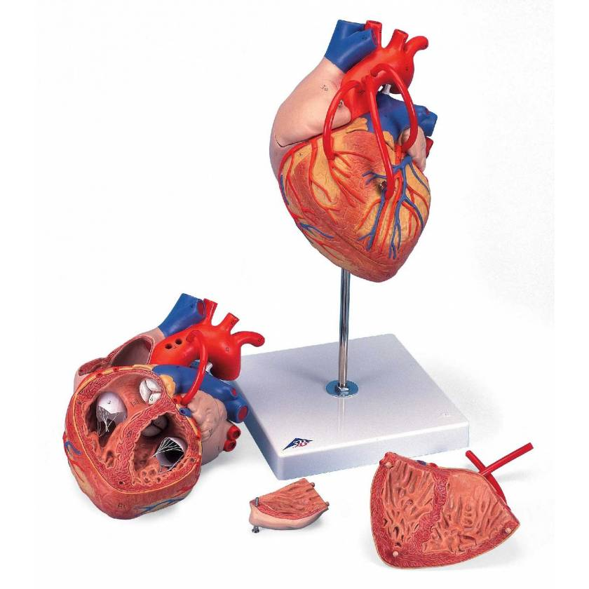 Heart Model with Bypass 2 Times Life-Size 4-Part