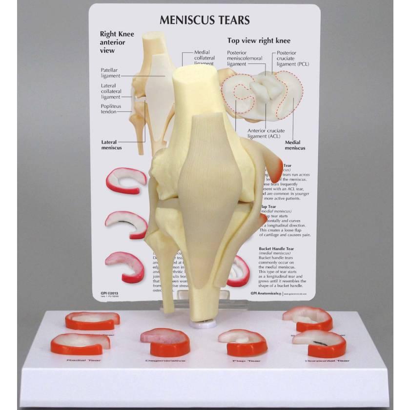 Meniscus Tears Knee Model