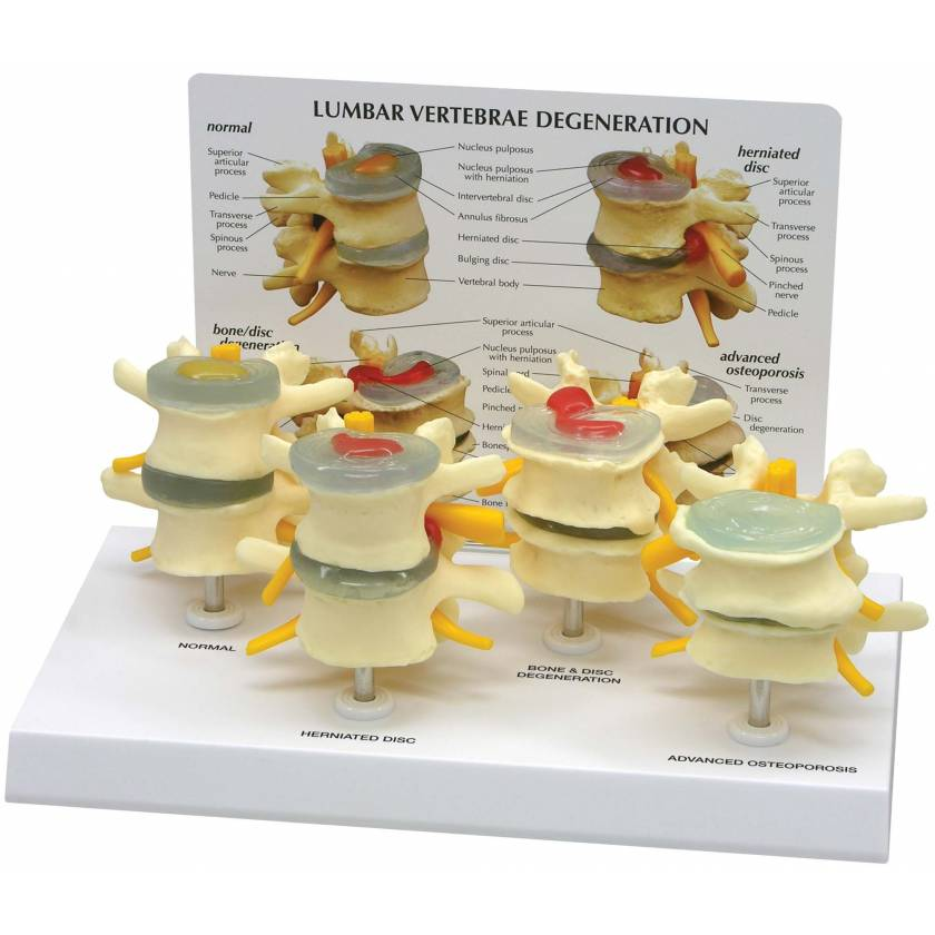 4-Stage Vertebrae Model