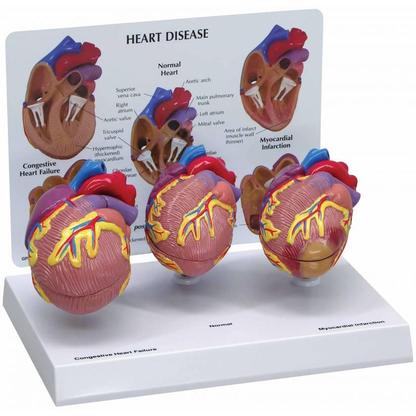 3-Piece Mini Heart Set Model