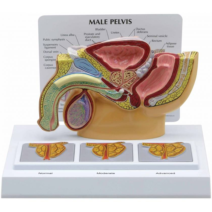 Male Pelvis with 3D Prostate Frame Model
