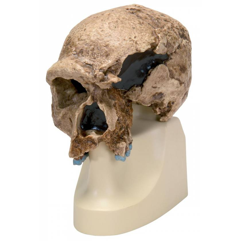 Anthropological Skull Model - Steinheim