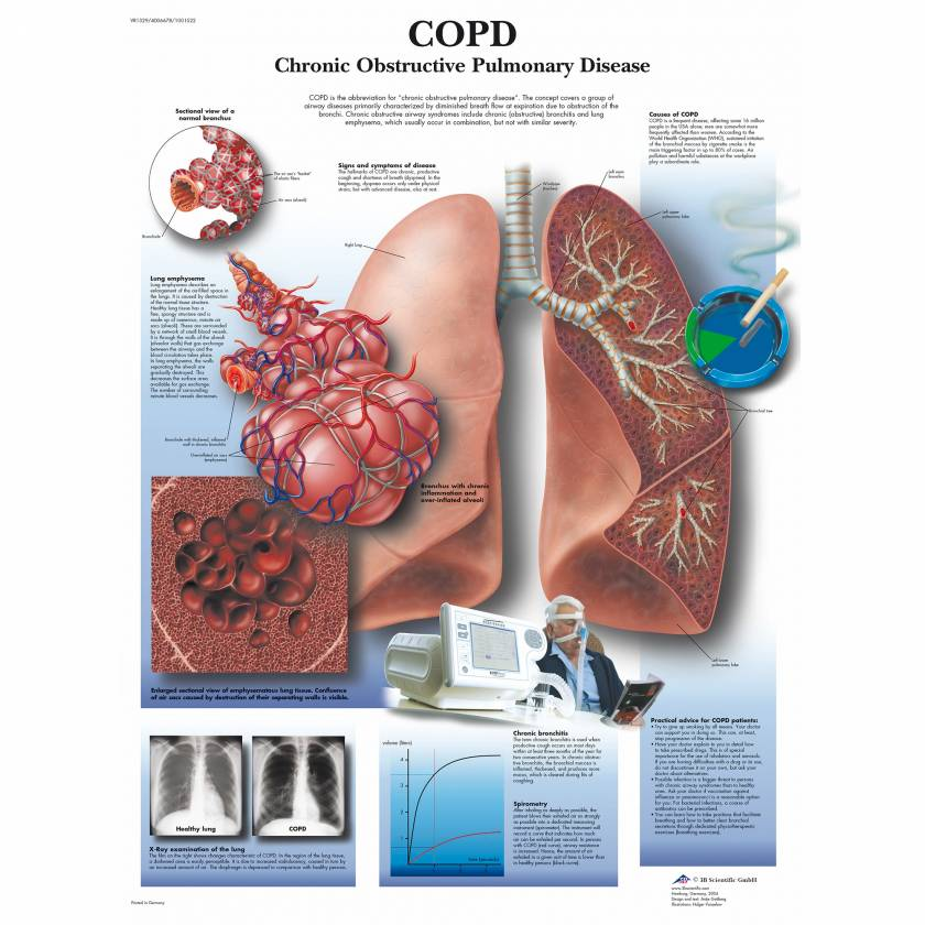 COPD Chart